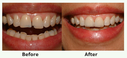 cosmetic Dentistry service